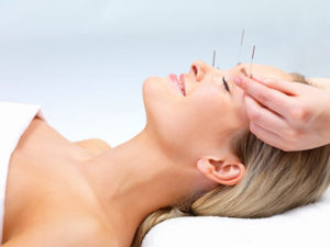Photo of woman getting acupuncture